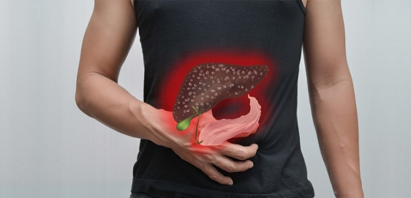 Common myths of Fatty Liver