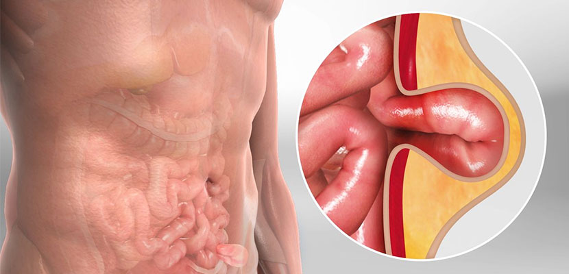 Hernia Surgery Cost in Hyderabad