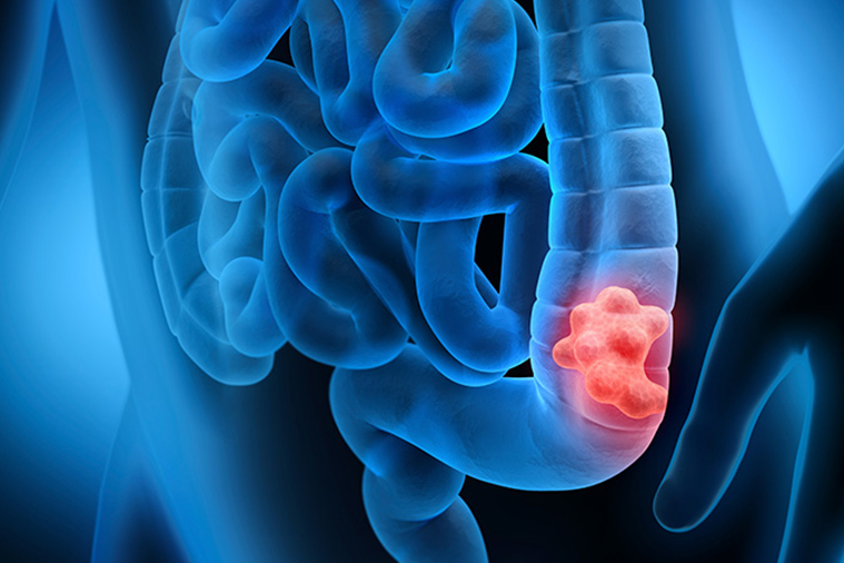 Best Colon Cancer Treatment in India