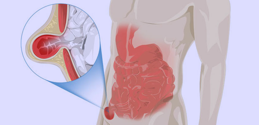Hernia's Explained: Different types of Hernias and their treatment options