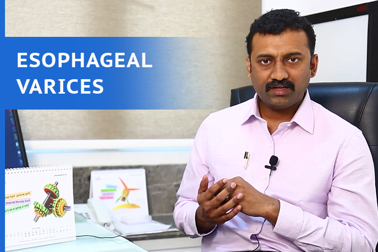Esophageal Varices Treatment in Hyderabad