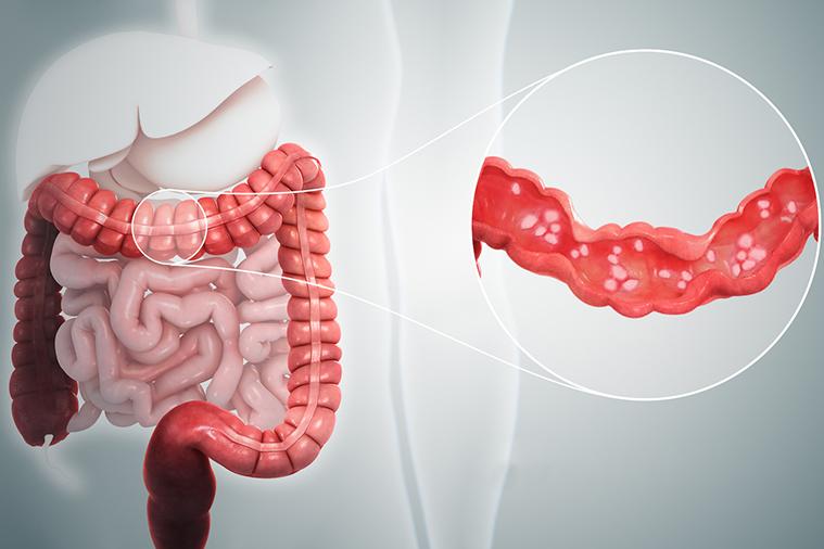 ulcerative colitis treatment